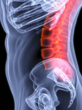 איך מקלים באופן מיידי על כאבי גב תחתון ודלקת?