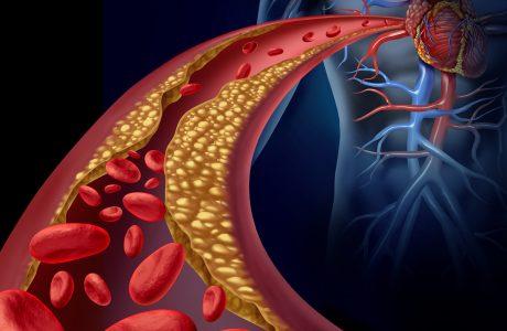 בעיות לב וכלי דם – שיטת הפסיכוקינזיס של אורן זריף מציעה דרך נוספת