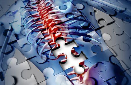 כאבי גב עליון ובצוואר – מה אפשר לעשות?
